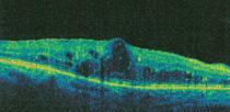 afwijkende-OCT-scan